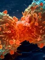 Khỏi bệnh ung thư nhờ tu Thiền